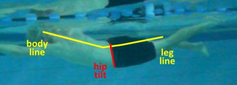 HipLeg Align 03